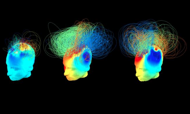 Nuevo estudio advierte que la conciencia es omnipresente en nuestro cerebro